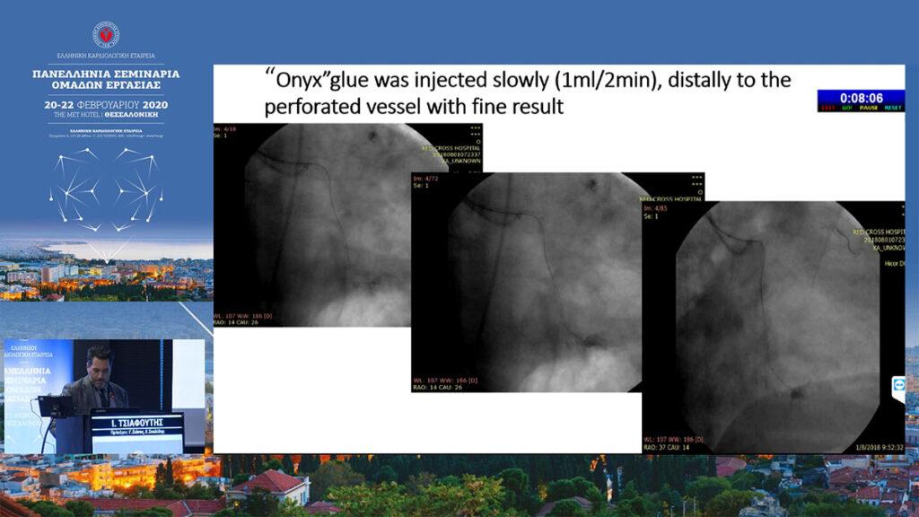 Ιωάννης Τσιαφούτης - Επεμβατικός καρδιολόγος - Επιπλοκές στις σύμπλοκες αγγειοπλαστικές 2